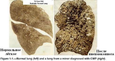 Нормальное лёгкое и лёгкое шахтёра, которому поставили диагноз 'пневмокониоз'