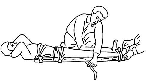 Первая помощь при вывихах, переломах, ушибах и растяжении связок - Первая помощь при переломах